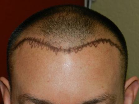 fue-hair-restoration-san-francisco