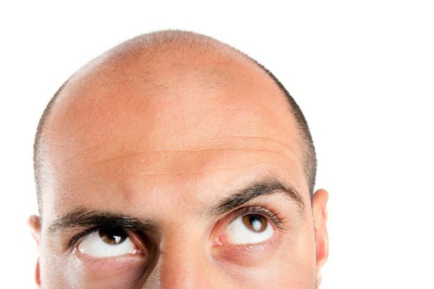 hair loss, hair transplant, bay area, san francisco, doctor