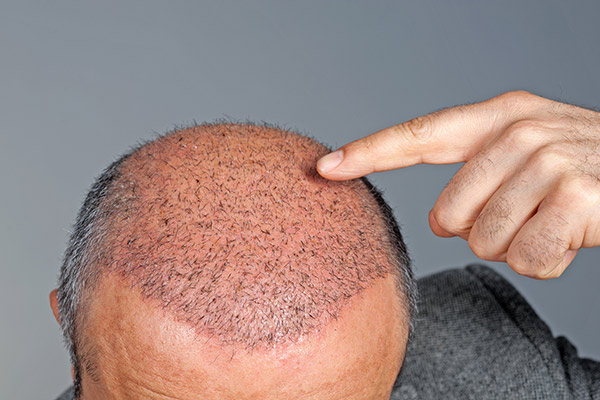 FUE hair transplant San Francisco