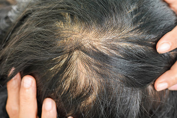 bald treatment San Francisco, hairline surgery San Francisco, men hair loss treatment San Francisco