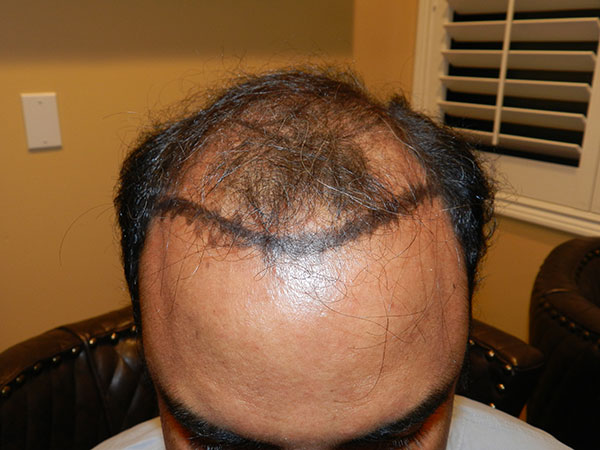 before mens hair loss treatment san jose
