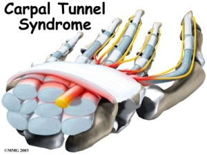hand_carpal_tunnel_