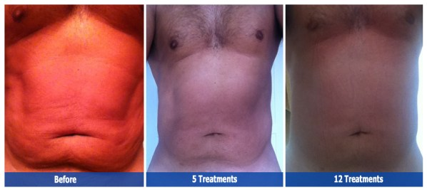 Before & After Mesotherapy