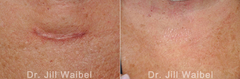 Scar Revision Before and After Pictures in Miami FL