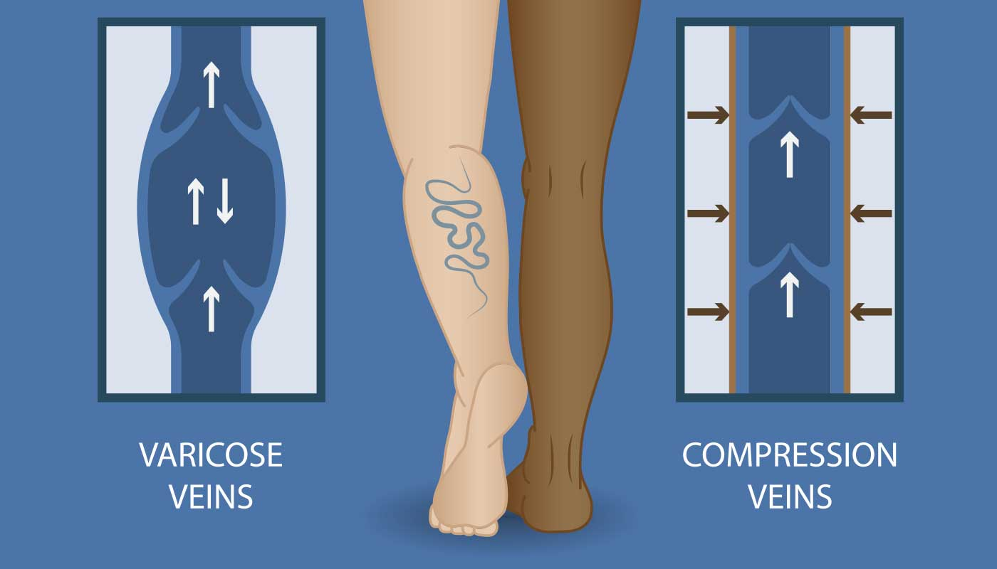 hight resolution of spider vein removal for the summer at the miami vein center