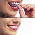 Invisalign Invisible Removable NYC Sinkin