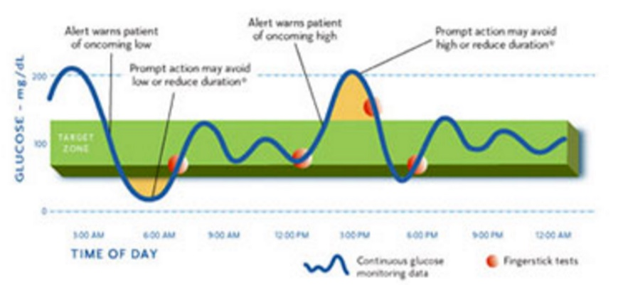 Continuous Glucose Monitor Dexcom Vs Medtronic Mymusings