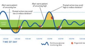 Непрерывная Глюкоза Monitor (CGM) график