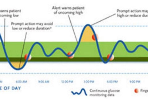 Additional Notes: Dexcom vs Medtronic CGM