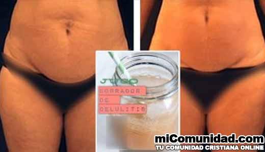 Derrite la celulitis junto con la grasa acumulada usando esto poción MAGICA