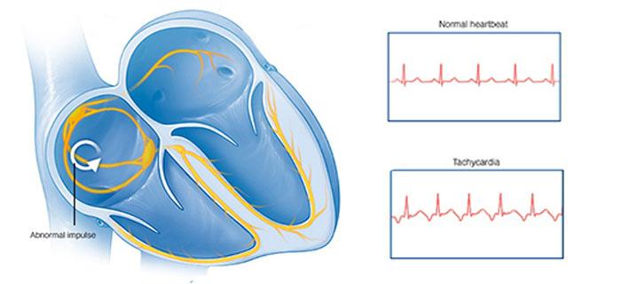 causas de l taquicardia