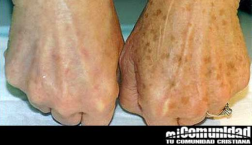 Después de este tratamiento: Eliminé las manchas y recuperé la suavidad en mis manos