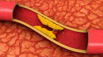 Ilustración-arteria-obstruída-por-colesterol