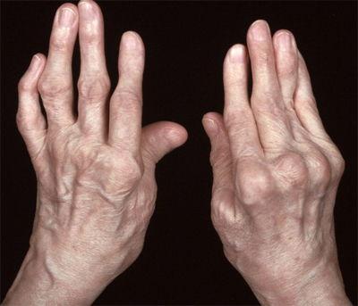 arthritis-equipment-uk-heberden's-osteo-nodes-bouchard's-alabama-montgomery-28916.jpg