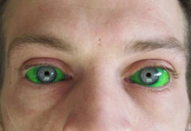 Tatuarse el ojo