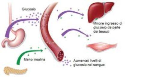 diabete mellito di tipo I
