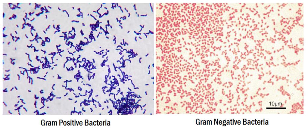 Aspetto dei gram positivi e dei gam negativi al microscopio.