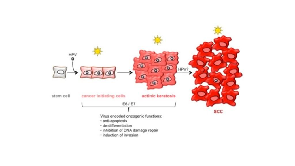 I linfociti T possono intevenire contro le le proliferazioni neoplastiche solo nelle fasi iniziali.