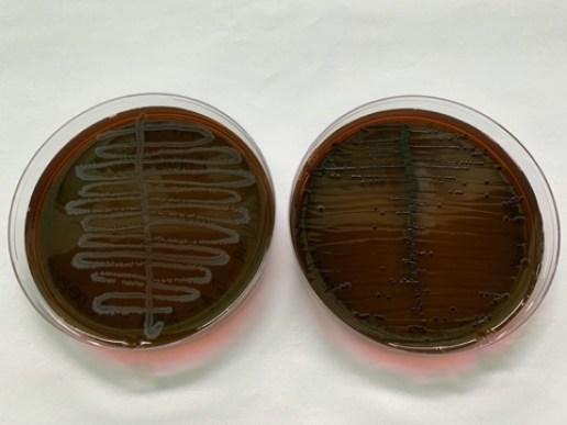 EMB Agar colonies