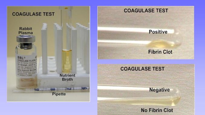 coagulasi test