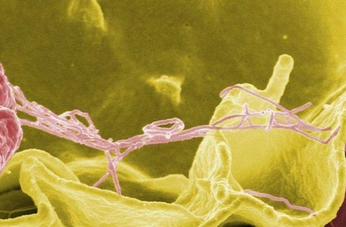 Salmonella al microscopio