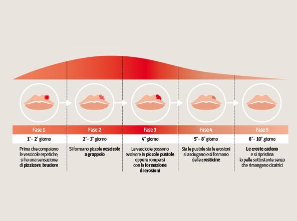Fasi della comparsa dell'herpes labiale