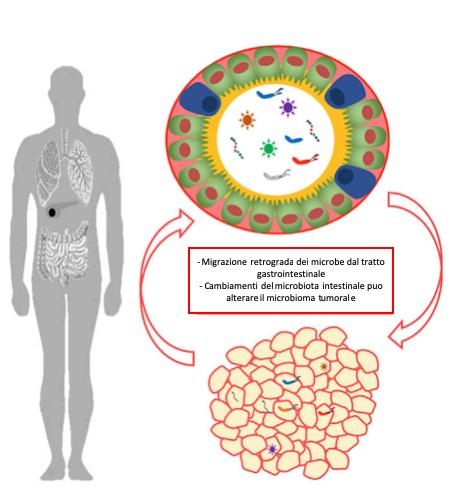 I microbi intestinali possono traslocarsi nei tumori direttamente attraverso il tratto gastrointestinale e / o per ematogeno diffusione. I tumori possono anche avere un impatto diretto sul microbioma intestinale, sebbene il meccanismo alla base di questo non sia ben caratterizzato.