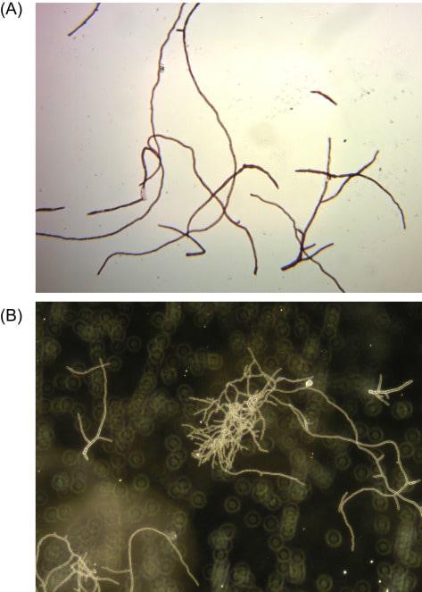 Ife filamentose e ramificate di F. venenatum