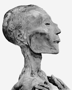 Mummia di Ramesse V. è possibile osservare sul volto segni riconducibili al vaiolo