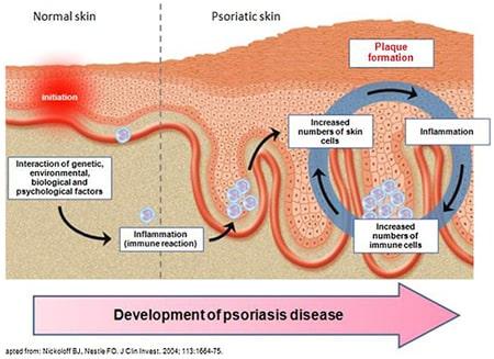 Sviluppo della patologia da psoriasi