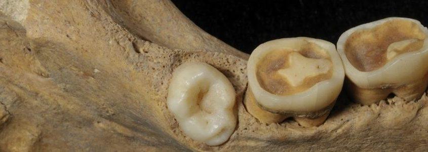 Dai denti ritrovati nel sito archeologico è stato possibile isolare il genoma del porgenitore di Salmonella Parathyphi C