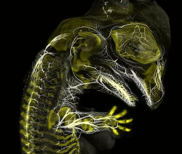 Embrione di alligatore nella fase di sviluppo dei nervi e dello scheletro. Tecnica: immunofluorescenza, ingrandimento 10x. Autori: Daniel Smith Paredes e Bhart-Anjan S. Bhullar