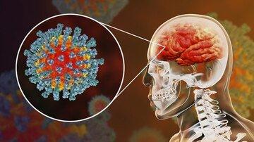 coronavirus in the brain