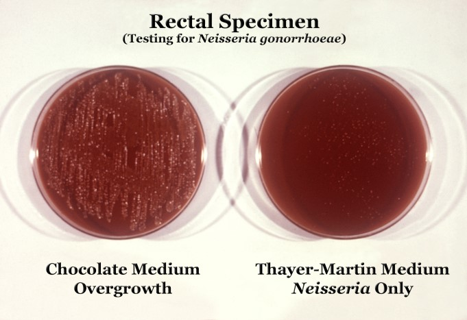 Neisseria gonorrhoeae su Chocolate medium e su Thaver-Martin medium