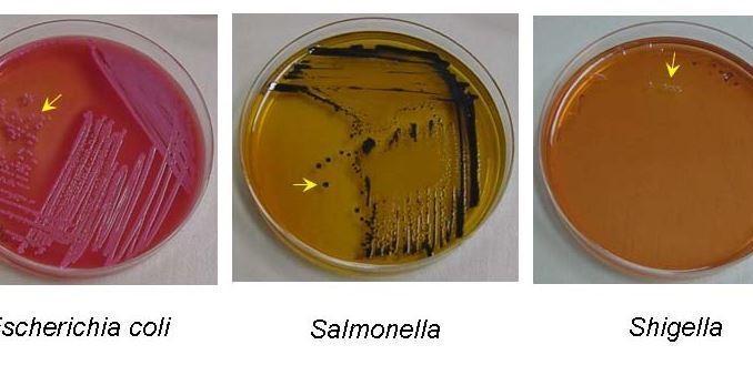 Crescita si Shigella in Shigella-Salmonella agar