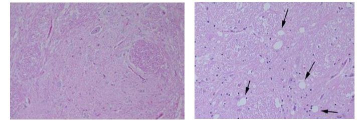 prioni: a sinistra è mostrato il tessuto nervoso di un bovino sano, a destra il tessuto nervoso di un bovino affetto da BSE, le frecce nere indicano la vacuolizzazione (perdita neuronale) del tessuto caratteristica comune di tutte le EST.