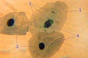 Chlamydophila pneumoniae al microscopio elettronico