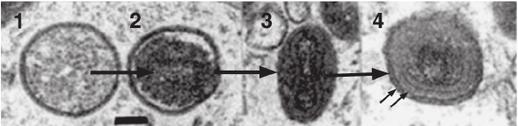 Cambiamento di forma durante la maturazione di un poxvirus. 1-2) Virione immaturo; 3) Virione maturo intracellulare; 4) Virione extracellulare rivestito, le frecce indicano le due membrane dell'envelope