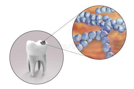 carie dentaria da S. mutans