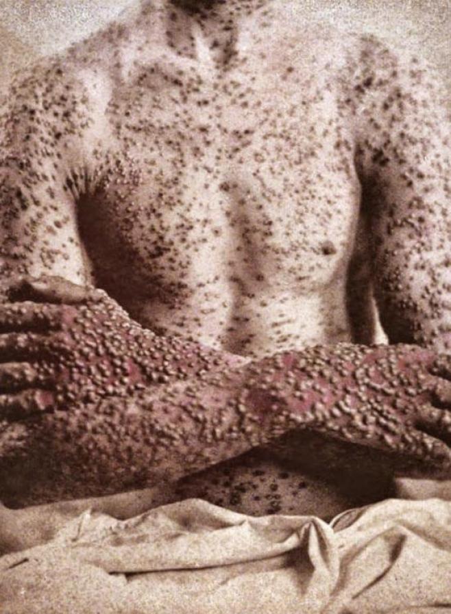 Manifestazione cutanea del vaiolo nell'uomo
