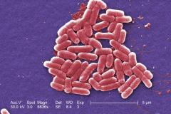 E. coli al SEM