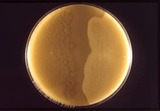 Clostridium perfringens 01