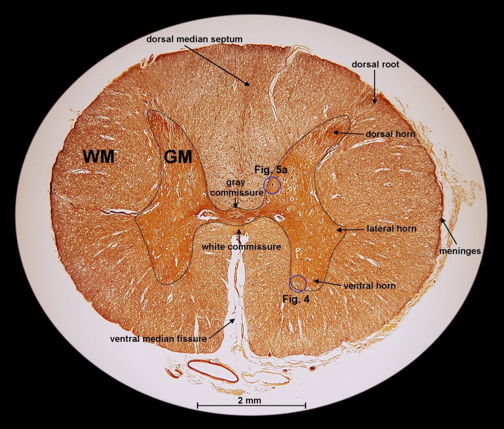 cross section spinal cord diagram labeled lan plug wiring multiple sclerosis research loss of nerves in