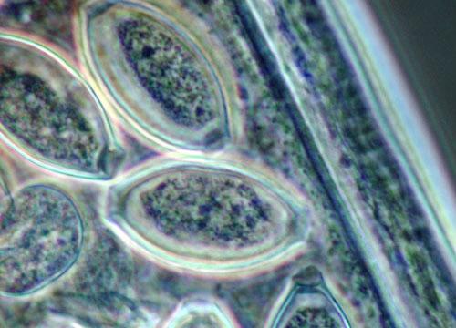 Whipworm Eggs Trichuris trichiura  MicroscopyU