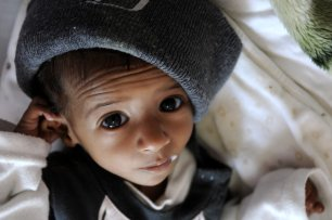 A malnourished Yemeni baby receives treatment at the Sabaeen hospital in Sanaa, Yemen on January 18, 2017 [Mohammed Hamoud/Anadolu Agency]