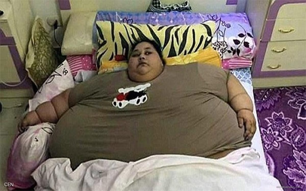 Egyptian patient Iman Ahmed Abdullatif, who weighs 500kg