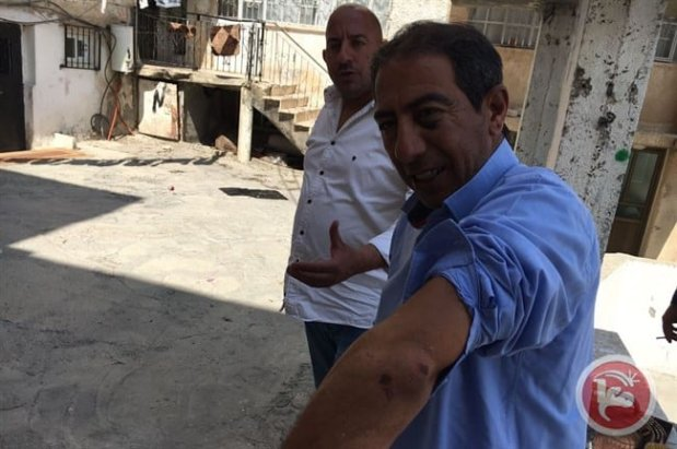 Ahmad Darwish displays his swollen and bruised elbow. [Image: Ma'an news agency]
