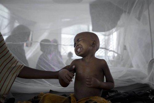 Somalian children wait for medical treatment at Bay Regional Hospital in Baidoa, capital of Bay State of Somalia on March 28, 2017 (Arif Hüdaverdi Yaman/Anadolu Agency )