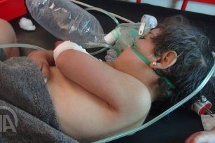 Image of Syrian child receiving treatment after the Assad regime carried out a chemical attack in Idlib, Syria on 4 April 2017