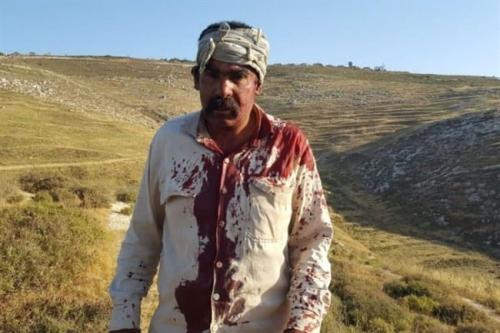Palestinian shepherd Mamoun Amin Nassar seen after being attacked by settlers on May 27, 2017 in Madama, West Bank [Zakariya Sada, field researcher with Rabbis for Human Rights]
